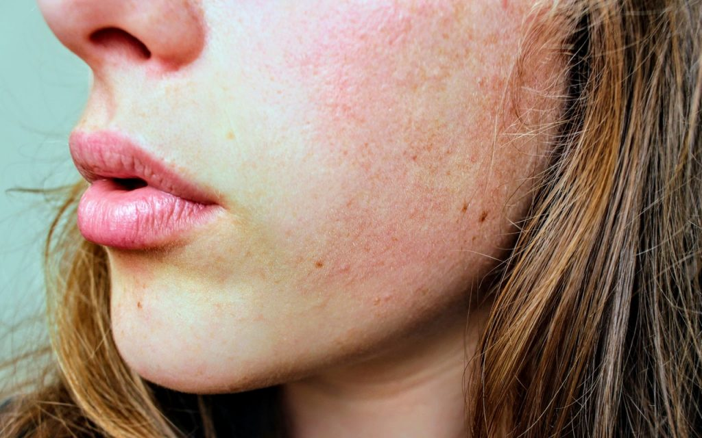 heal scars naturally